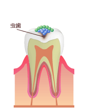 虫歯になる原因